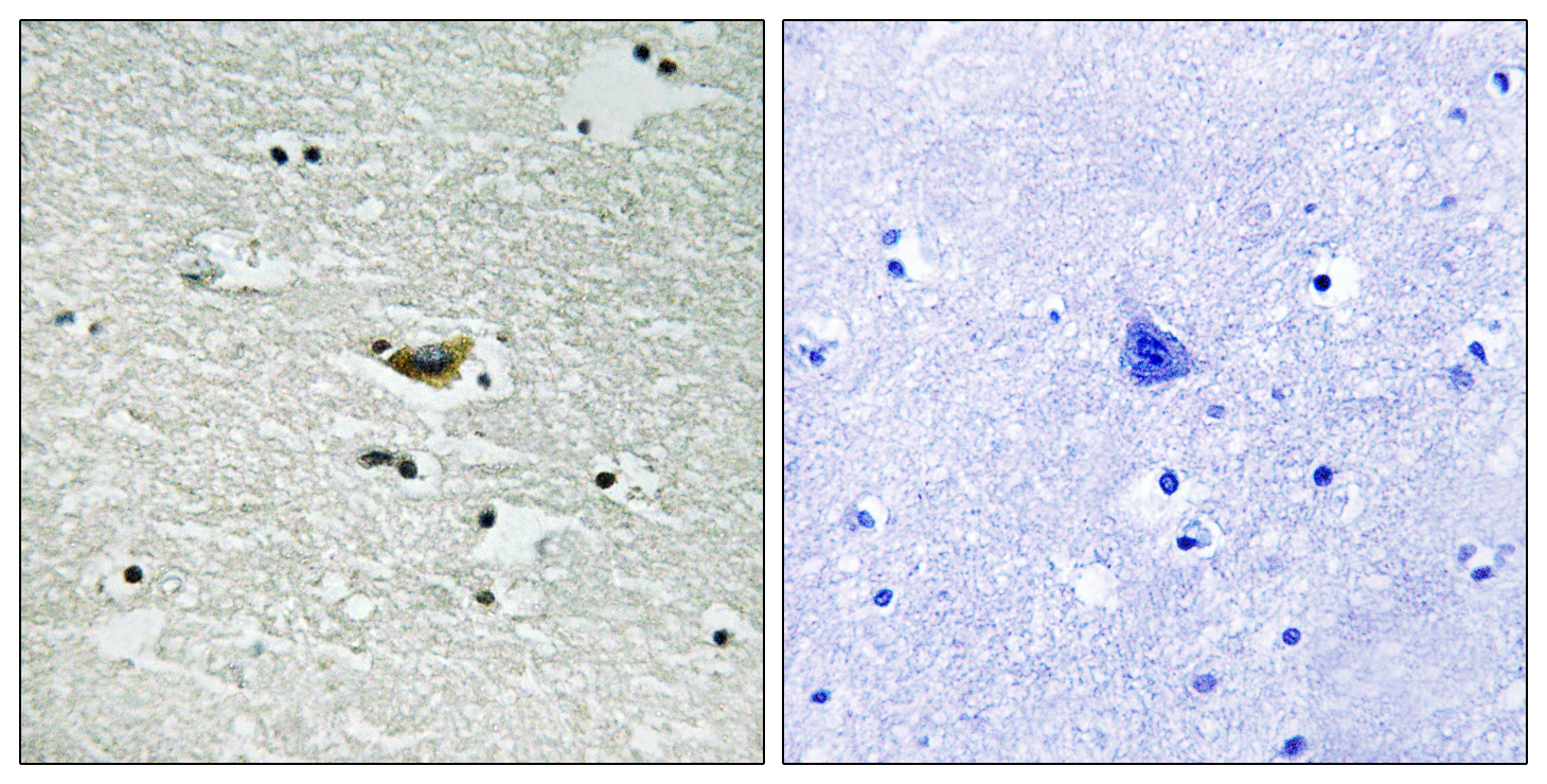 CSNK1A1 (Phospho-Tyr294) Antibody (OAAF00437) in Human brain cells using Immunohistochemistry