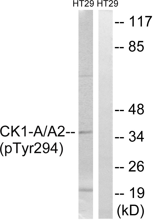 CSNK1A1 (Phospho-Tyr294) Antibody (OAAF00437) in HT-29 cells using Western Blot