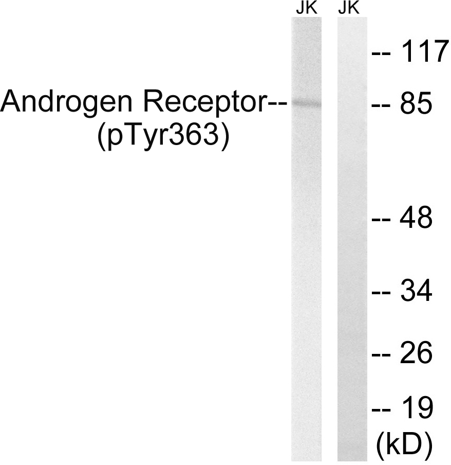 AR (Phospho-Tyr363) Antibody (OAAF00488) in Jurkat cells using Western Blot