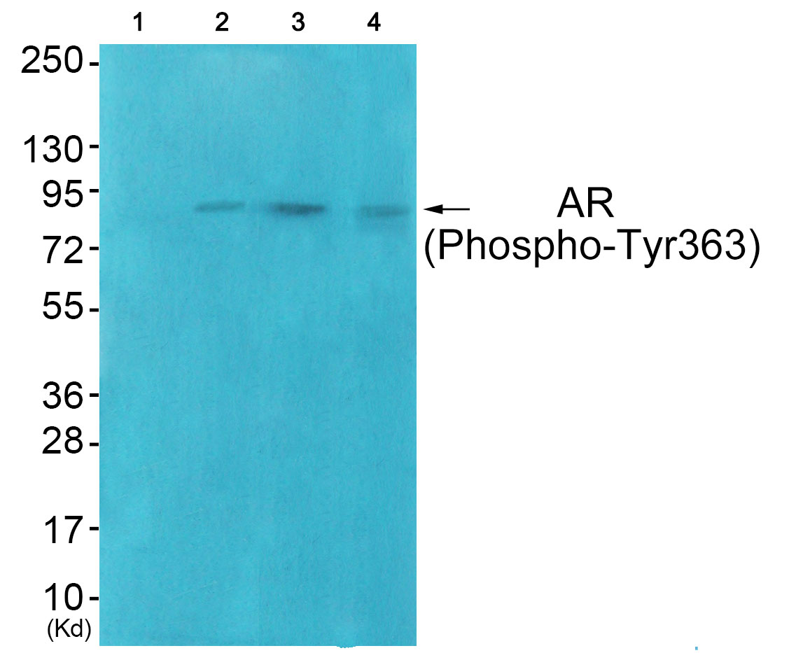 AR (Phospho-Tyr363) Antibody (OAAF00488) in HuvEc, COS7, JK cells using Western Blot