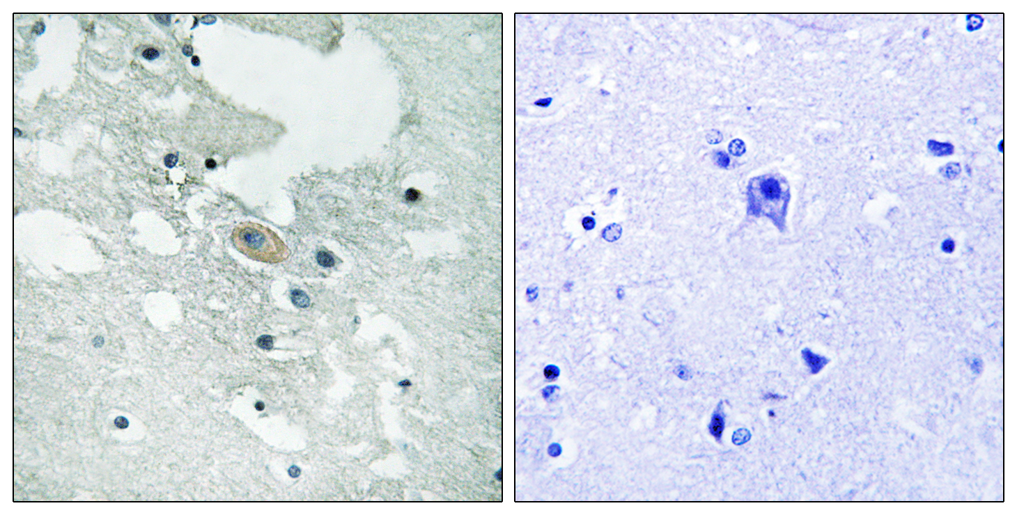 BLNK (Phospho-Tyr84) Antibody (OAAF00491) in Human brain cells using Immunohistochemistry