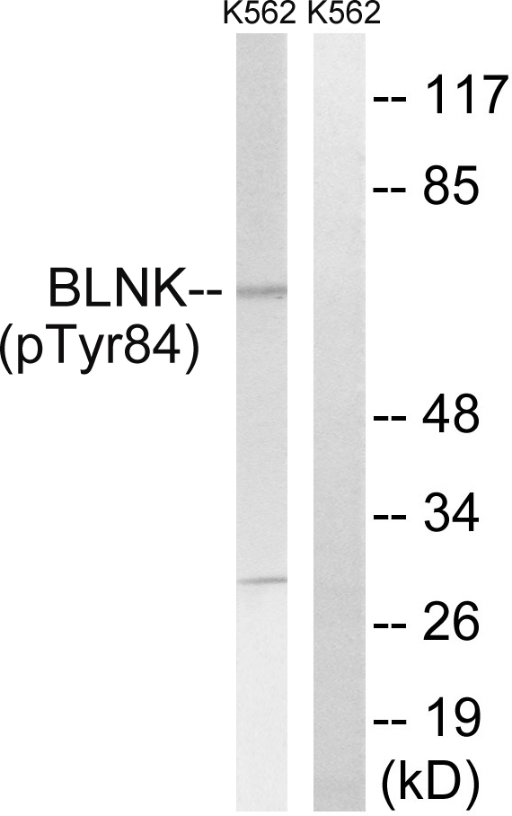 BLNK (Phospho-Tyr84) Antibody (OAAF00491) in K562 cells using Western Blot