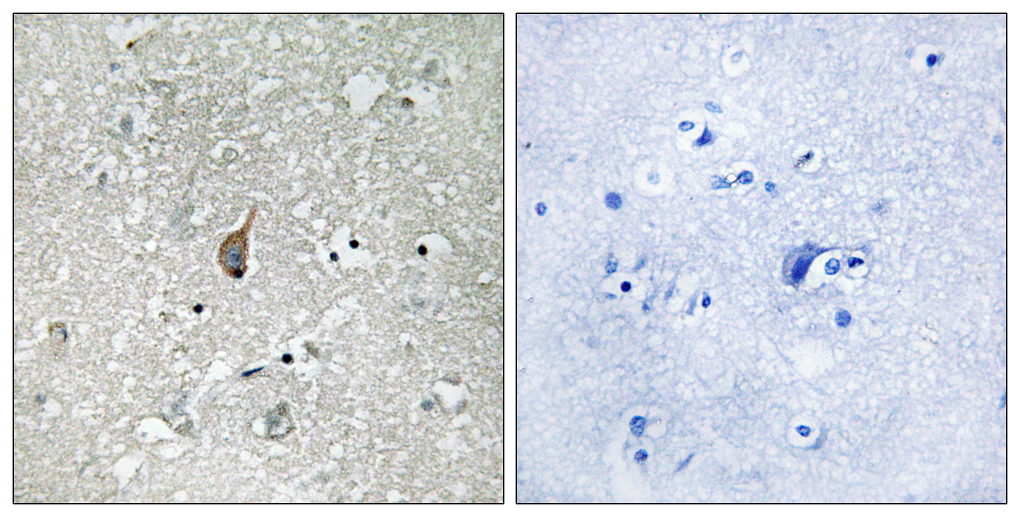 ANAPC1 (Phospho-Ser355) Antibody (OAAF00506) in Human brain cells using Immunohistochemistry