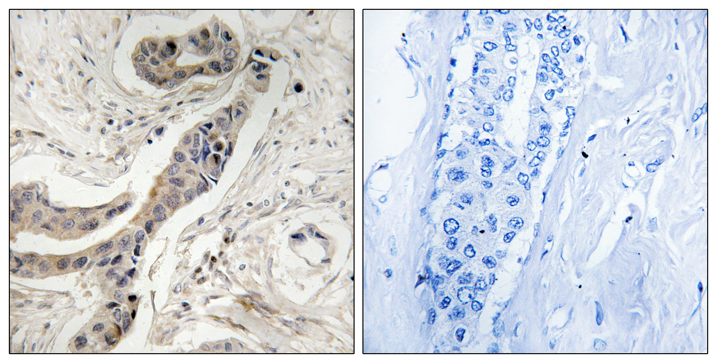 BCL2L1 (Phospho-Thr115) Antibody (OAAF00507) in Human breast carcinoma cells using Immunohistochemistry