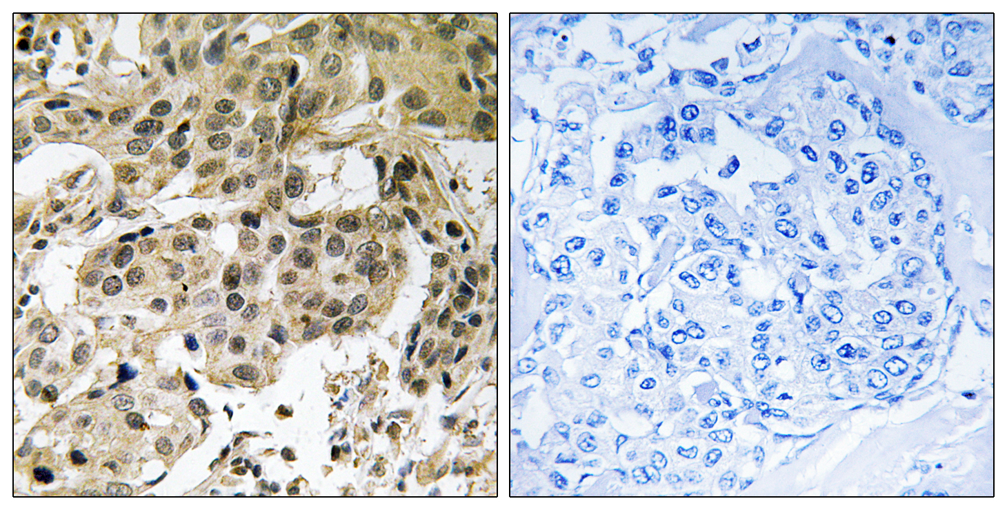 CBX5 (Phospho-Ser92) Antibody (OAAF00516) in Human breast carcinoma cells using Immunohistochemistry