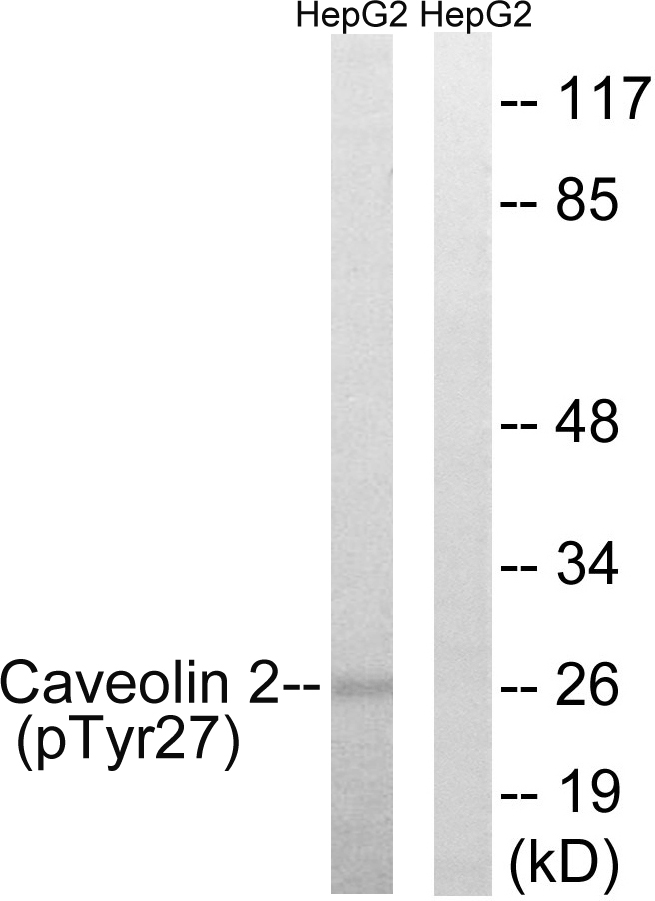 CAV2 (Phospho-Tyr27) Antibody (OAAF00517) in HepG2 cells using Western Blot