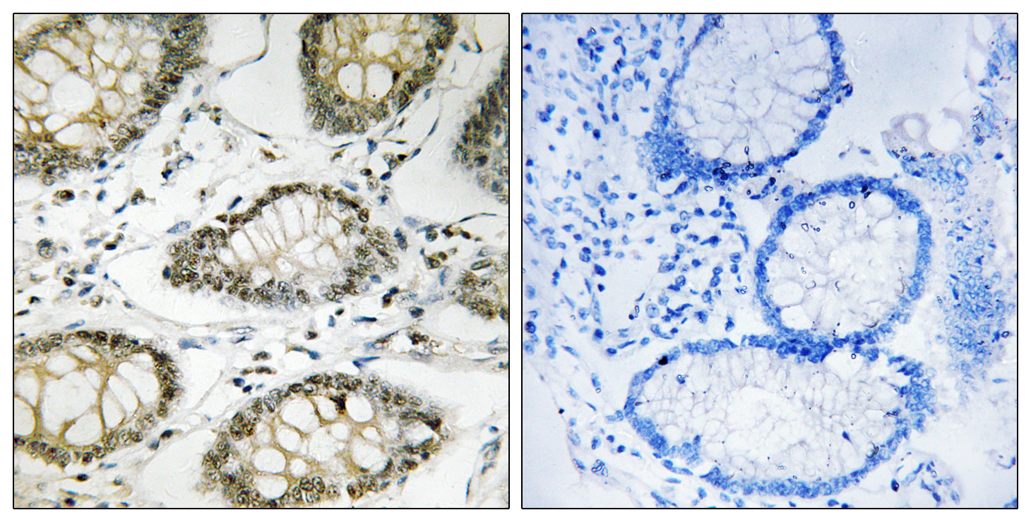 ATR (Phospho-Ser428) Antibody (OAAF00519) in Human colon carcinoma cells using Immunohistochemistry