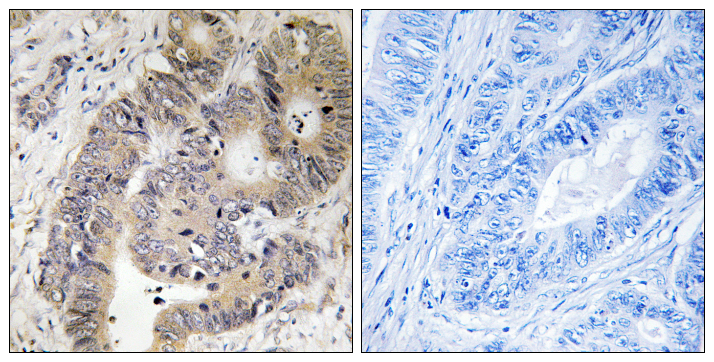CAD (Phospho-Thr456) Antibody (OAAF00532) in Human colon carcinoma cells using Immunohistochemistry