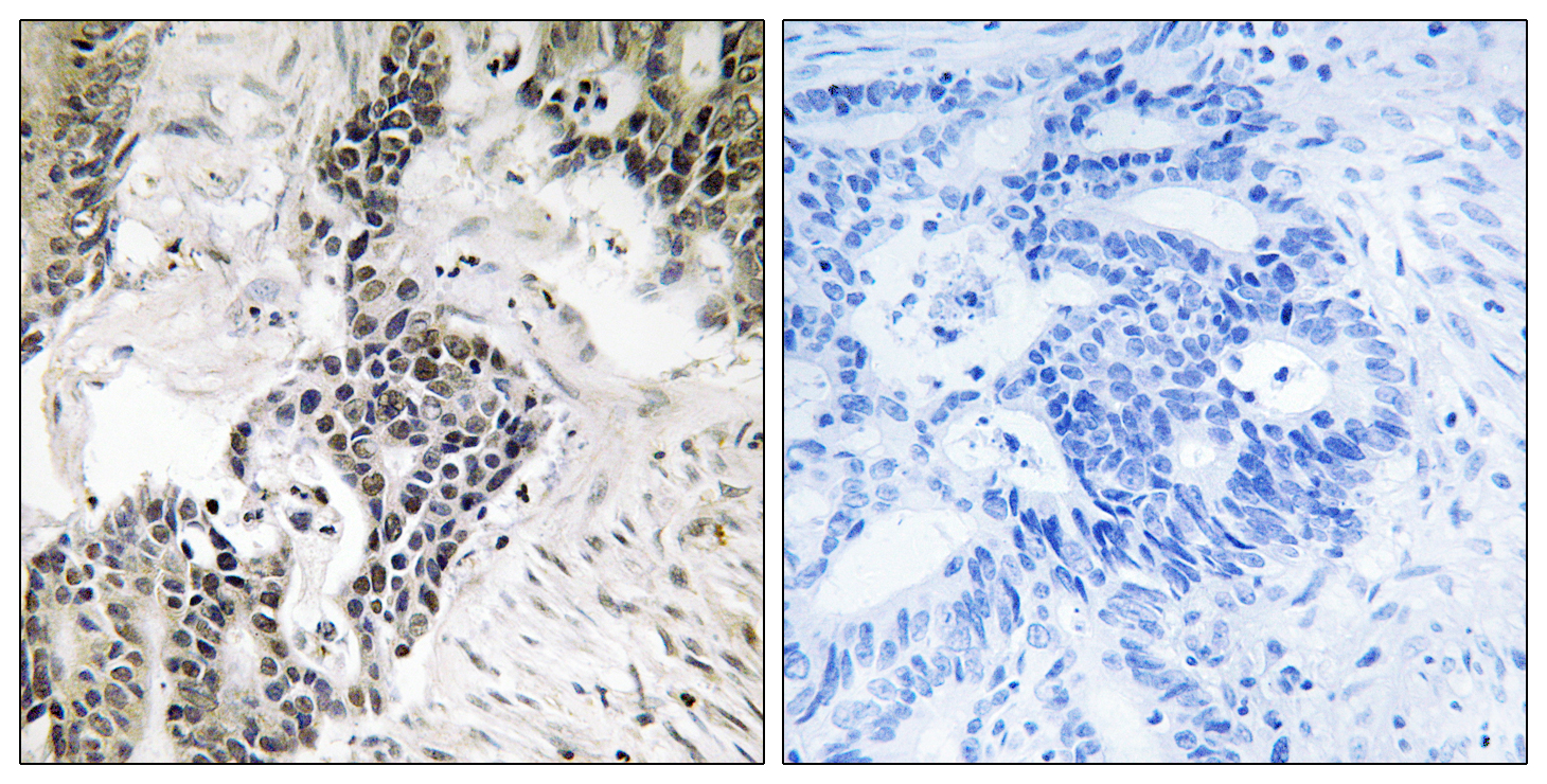 CDC25C (Phospho-Ser198) Antibody (OAAF00533) in Human colon carcinoma cells using Immunohistochemistry