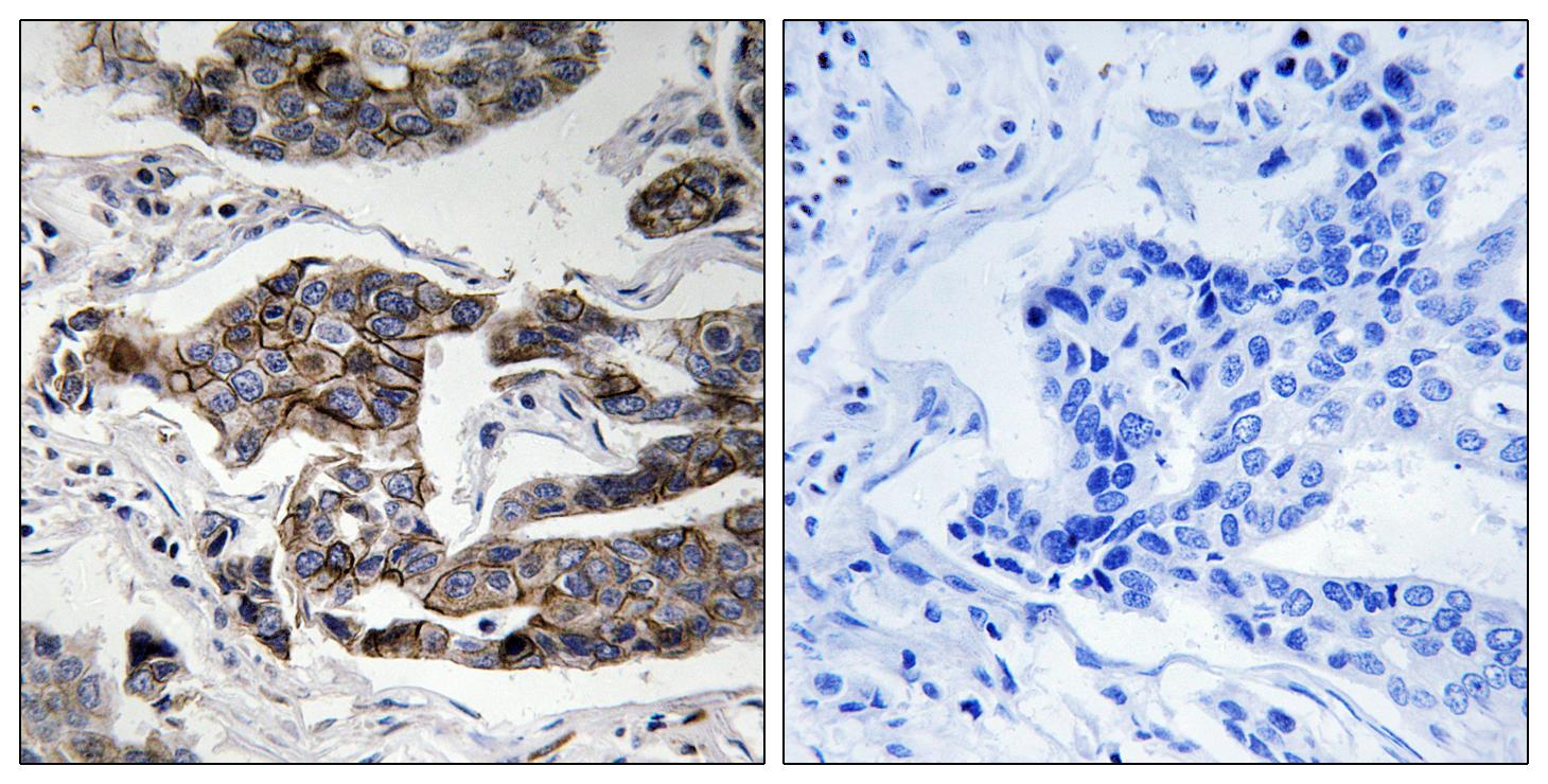 CCDC88A (Phospho-Ser1417) Antibody (OAAF00550) in Human breast carcinoma cells using Immunohistochemistry
