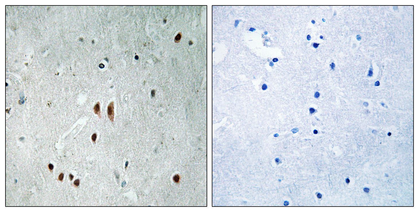 CNOT2 (Phospho-Ser101) Antibody (OAAF00563) in Human brain cells using Immunohistochemistry