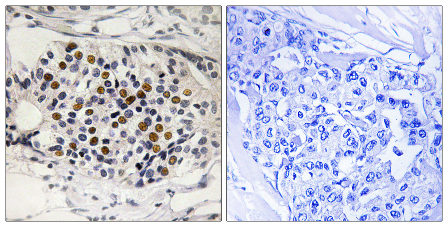 CDKN2A (Phospho-Ser152) Antibody (OAAF00565) in Human breast carcinoma cells using Immunohistochemistry