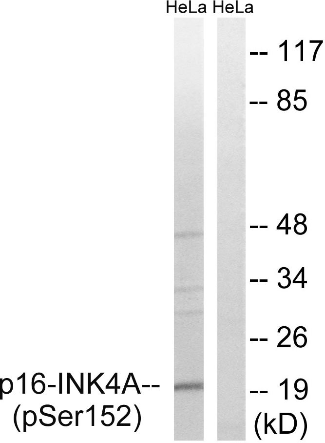 CDKN2A (Phospho-Ser152) Antibody (OAAF00565) in HeLa cells using Western Blot