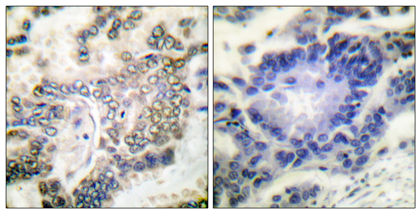 CEBPA Antibody (OAAF00669) in Human lung carcinoma cells using Immunohistochemistry