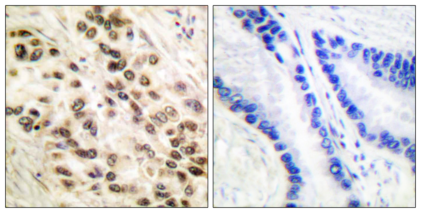 CEBPB Antibody (OAAF00670) in Human lung carcinoma cells using Immunohistochemistry