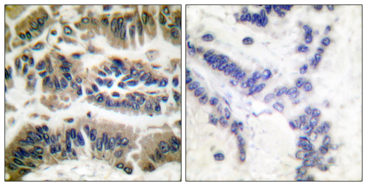 CASP6 Antibody (OAAF00671) in Human breast carcinoma cells using Immunohistochemistry