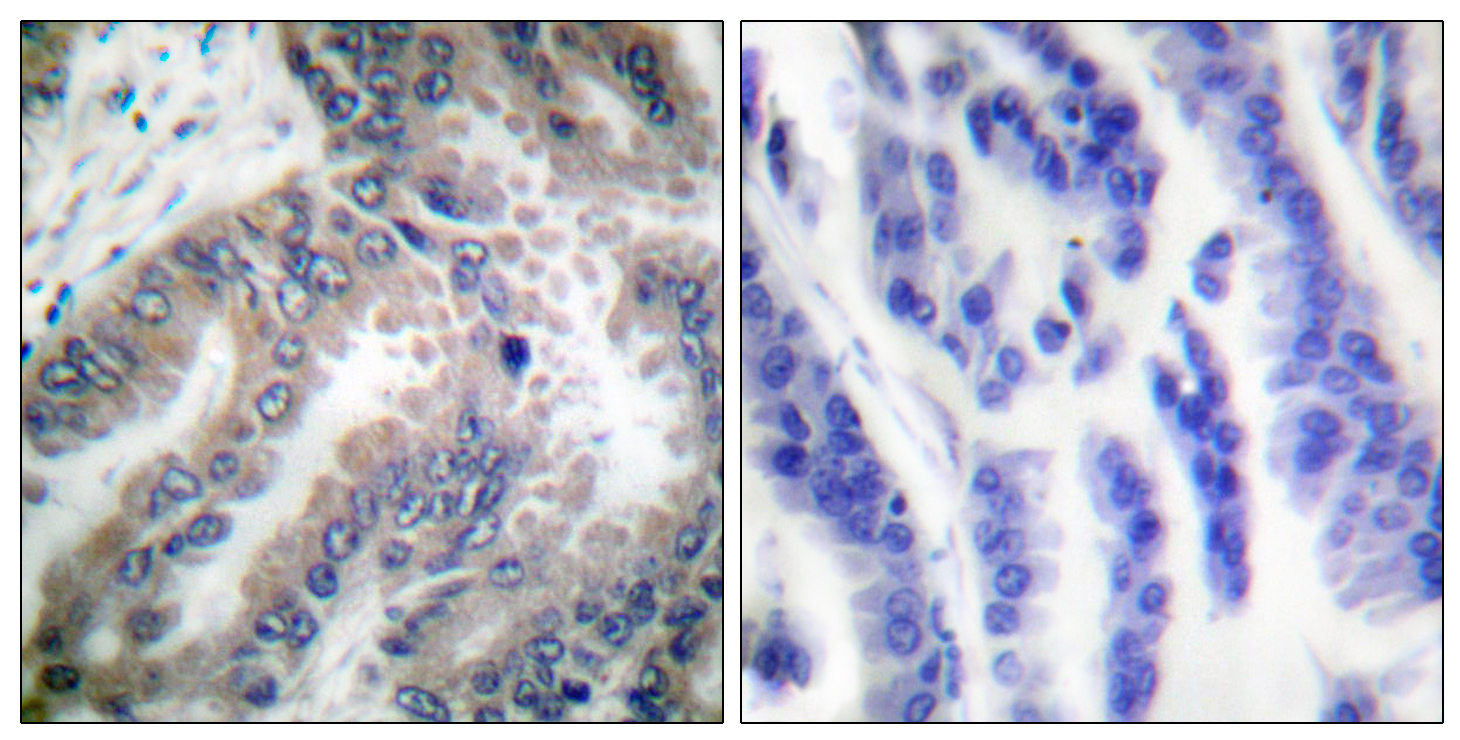 CASP8 Antibody (OAAF00672) in Human lung carcinoma cells using Immunohistochemistry