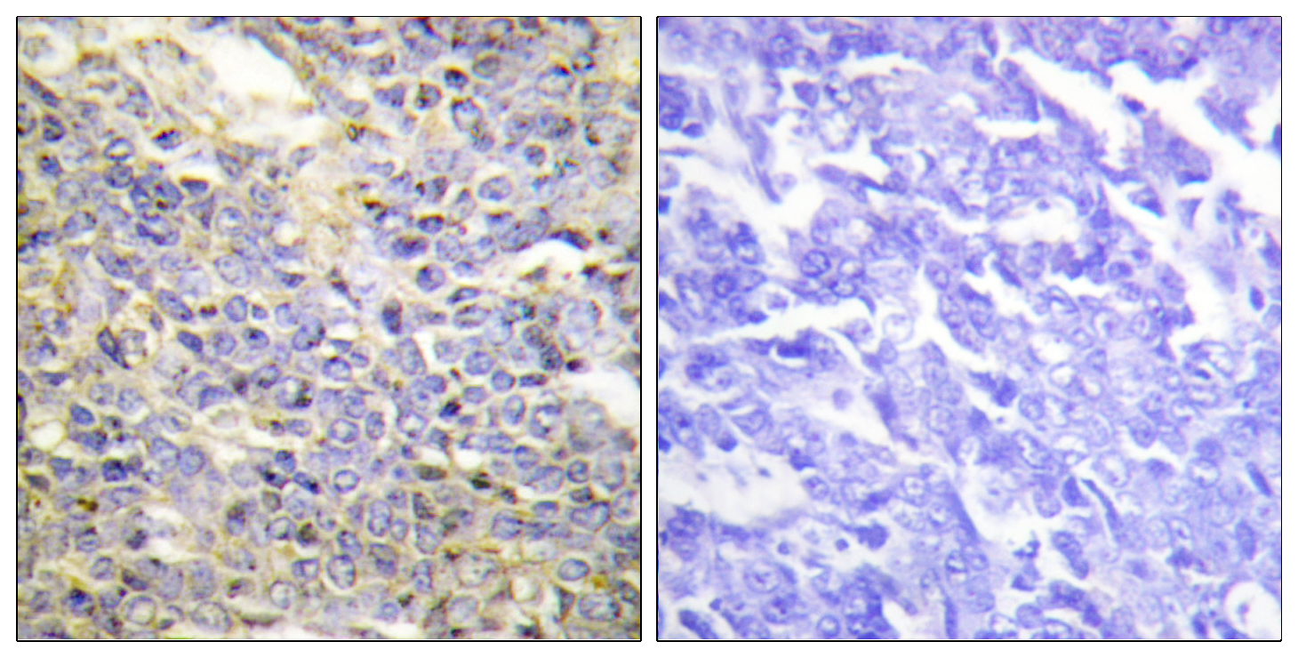 CASP9 Antibody (OAAF00673) in Human lung carcinoma cells using Immunohistochemistry