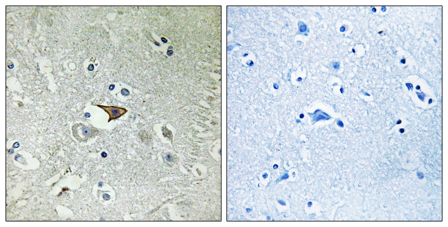 CCR5 Antibody (OAAF00674) in Human brain cells using Immunohistochemistry