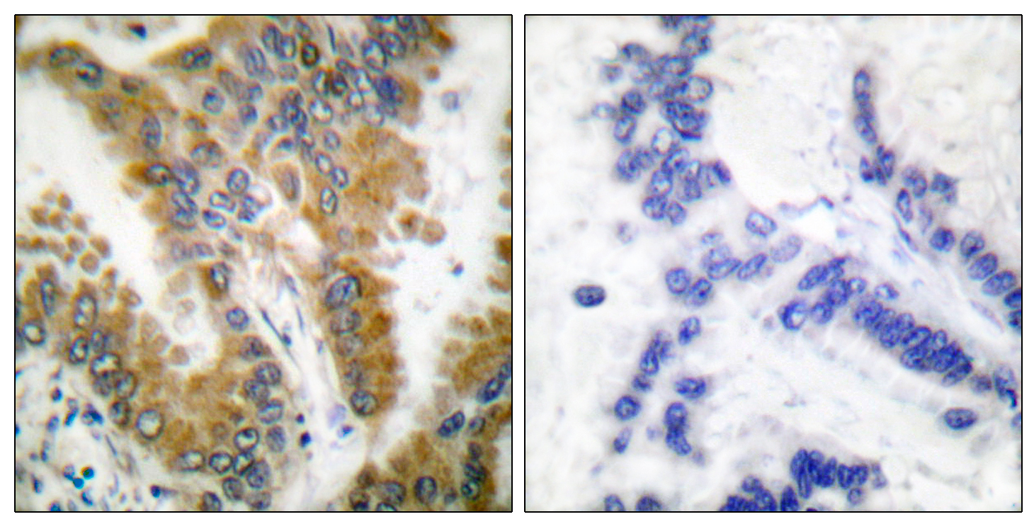 CrkL Antibody (OAAF00680) in Human lung carcinoma cells using Immunohistochemistry