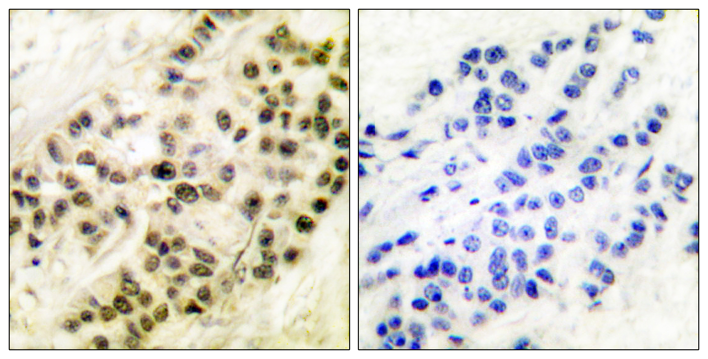 CCNB1 Antibody (OAAF00681) in Human breast carcinoma cells using Immunohistochemistry