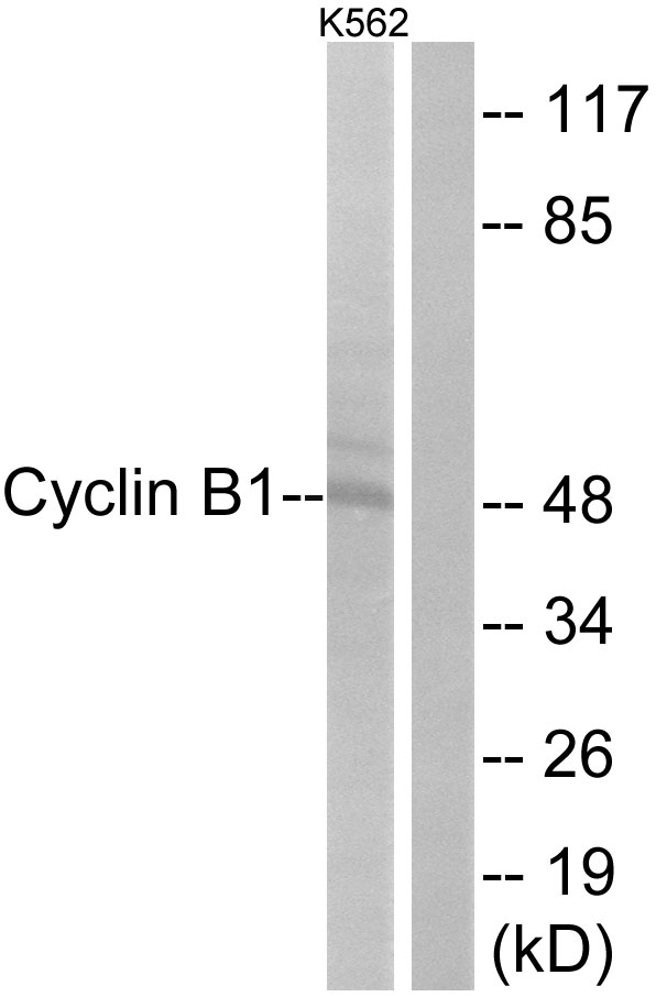 CCNB1 Antibody (OAAF00681) in HeLa cells using Western Blot