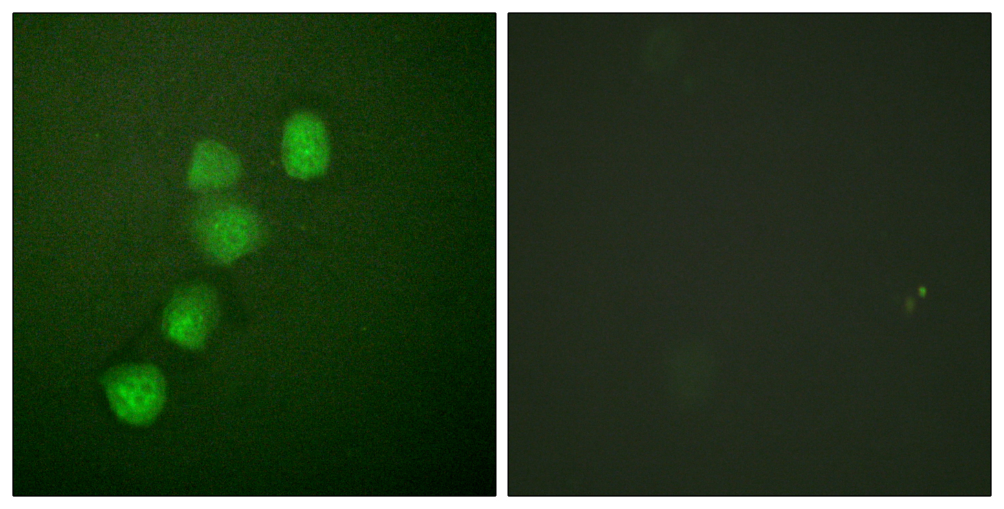CCNE1 Antibody (OAAF00682) in HuvEc cells using Immunofluorescence