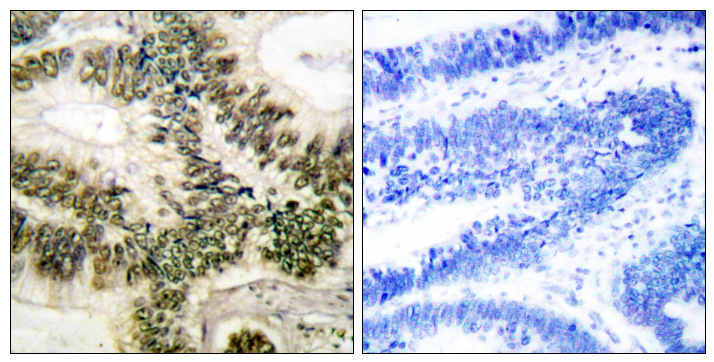 CCNE1 Antibody (OAAF00682) in Human colon carcinoma cells using Immunohistochemistry