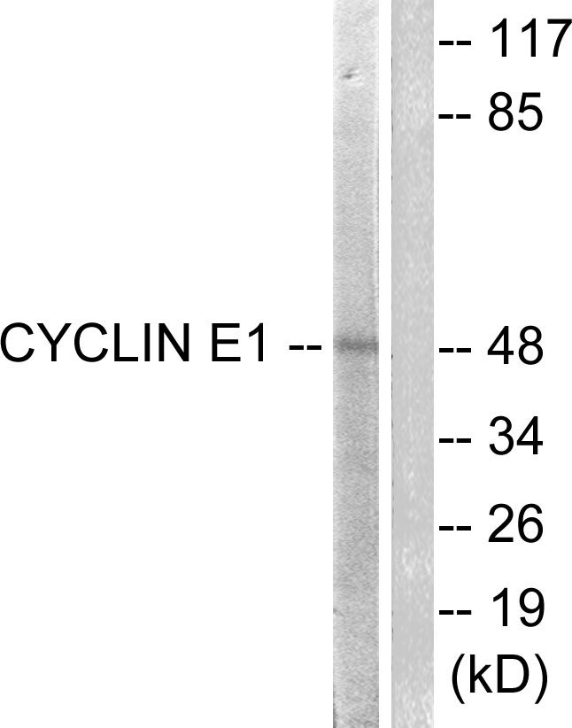 CCNE1 Antibody (OAAF00682) in HeLa cells using Western Blot
