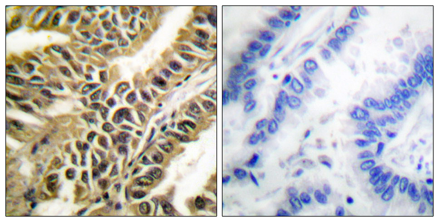 ABL1 Antibody (OAAF00709) in Human lung carcinoma cells using Immunohistochemistry