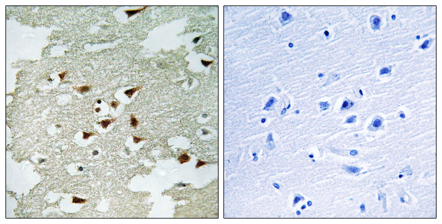 AKT1 Antibody (OAAF00713) in Human lung carcinoma cells using Immunohistochemistry