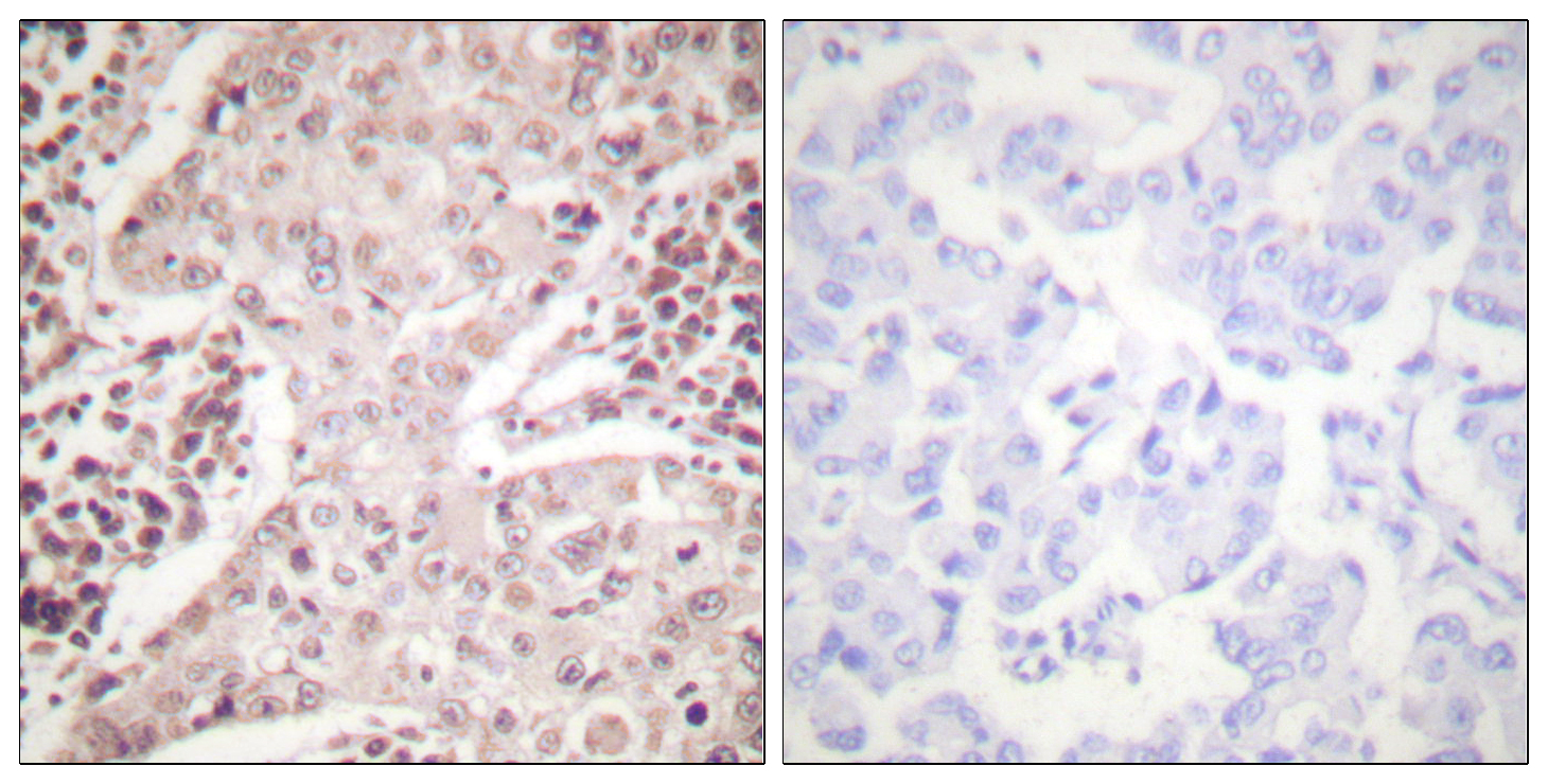 CHEK2 Antibody (OAAF00721) in Human breast carcinoma cells using Immunohistochemistry