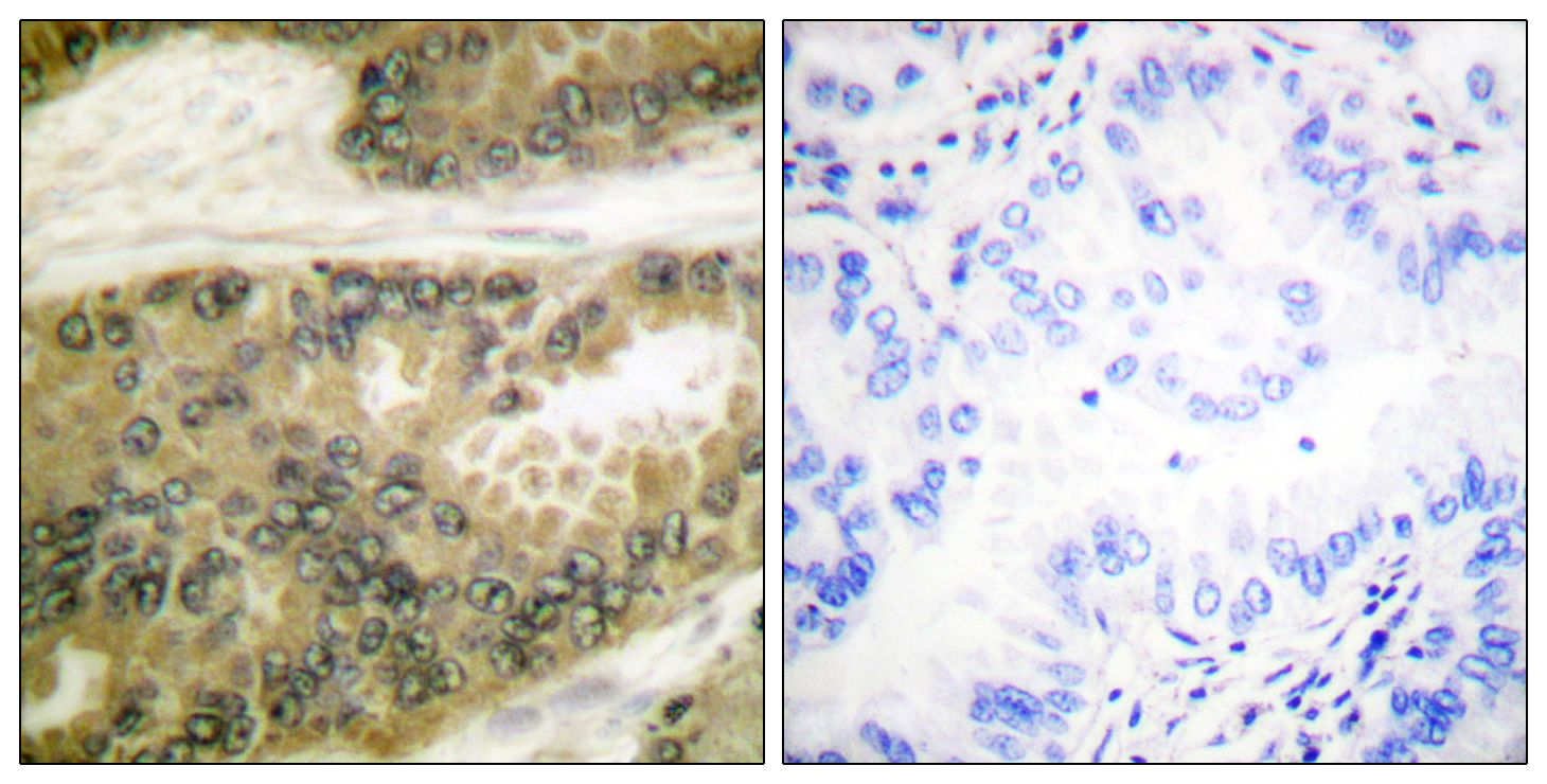 CCND3 Antibody (OAAF00725) in Human lung carcinoma cells using Immunohistochemistry