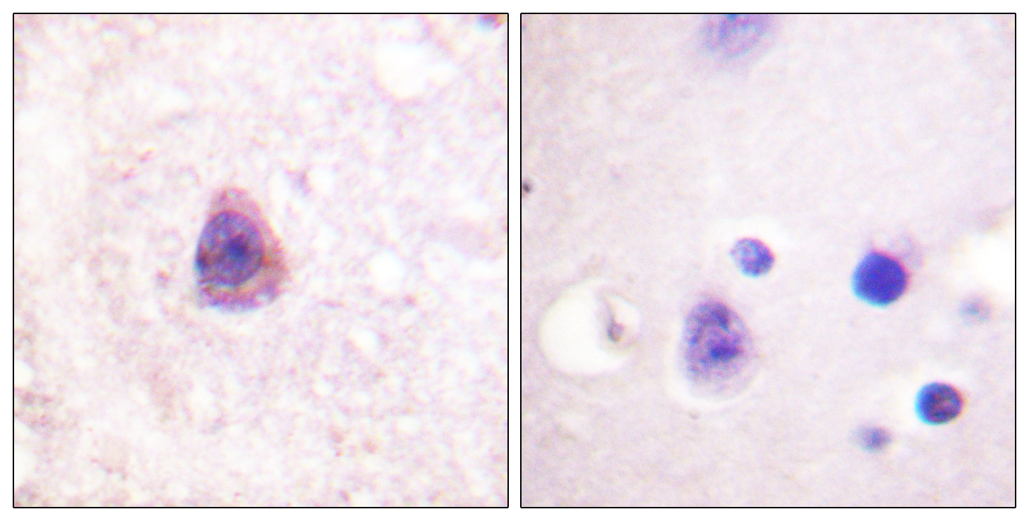 ARRB1 Antibody (OAAF00754) in Human brain cells using Immunohistochemistry