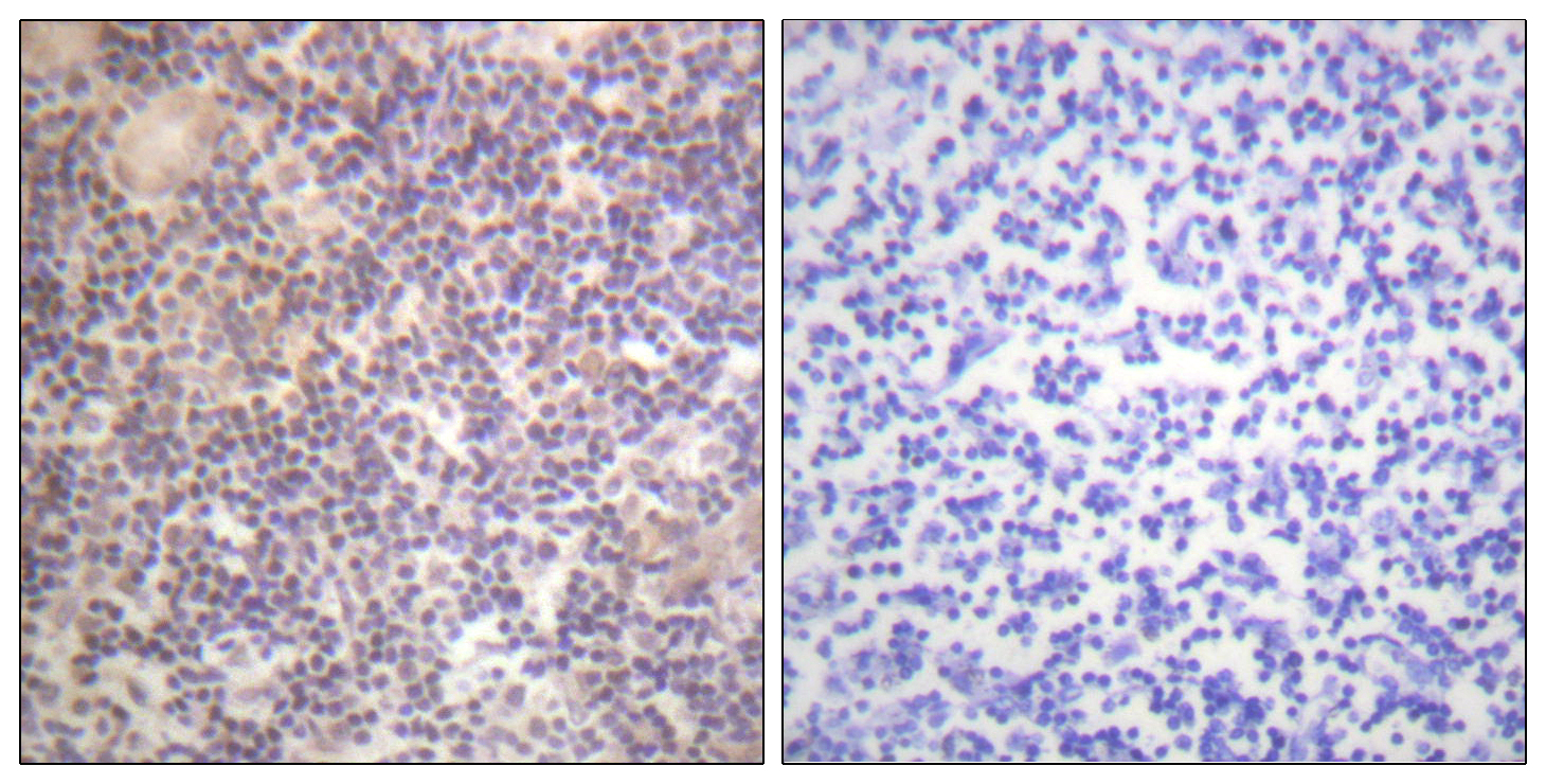 CREB1 Antibody (OAAF00759) in Human tonsil cells using Immunohistochemistry