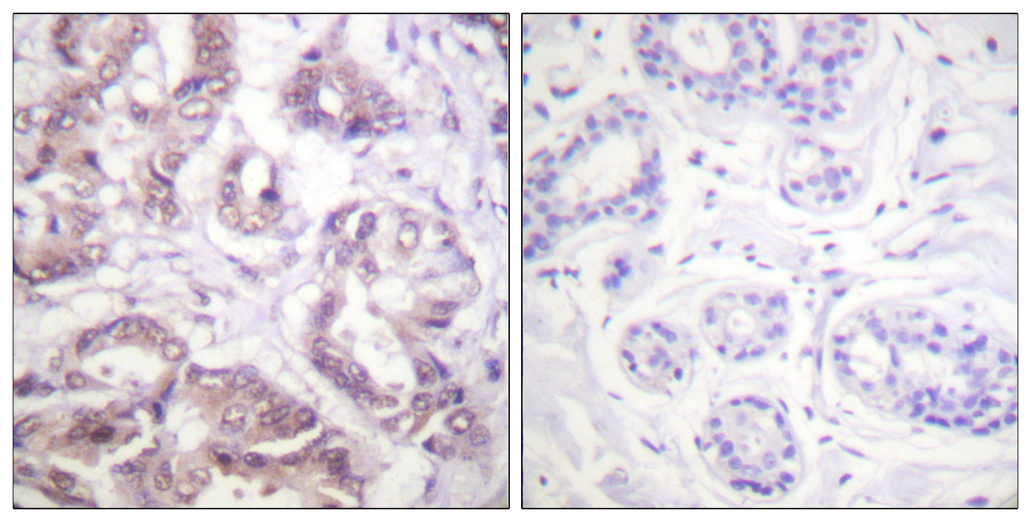 BIRC5 Antibody (OAAF00842) in Human breast carcinoma cells using Immunohistochemistry