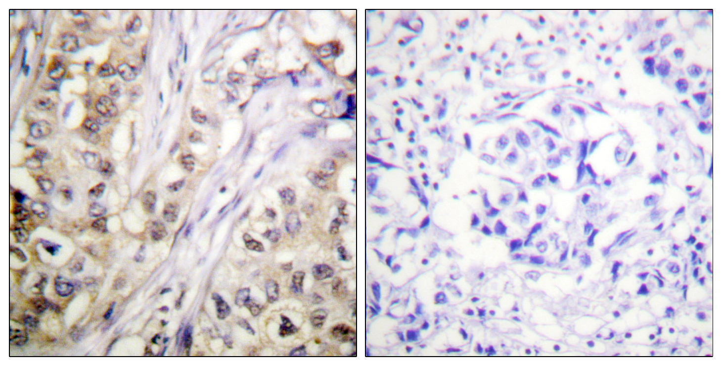 BIRC5 Antibody (OAAF00843) in Human breast carcinoma cells using Immunohistochemistry