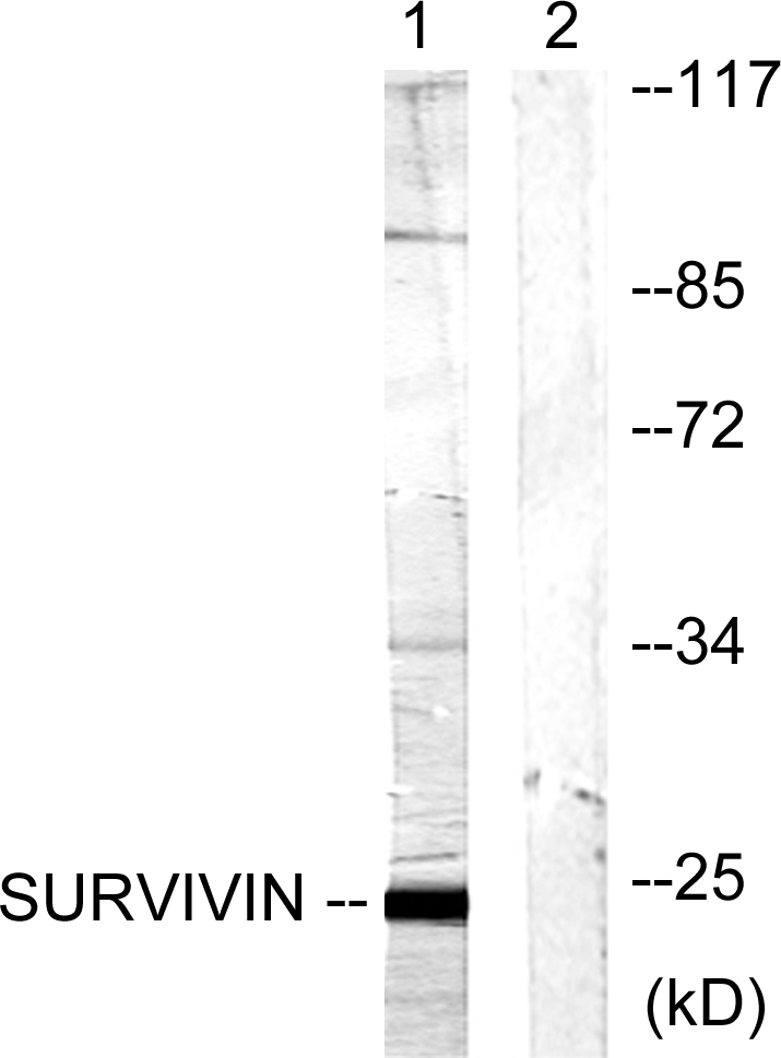 BIRC5 Antibody (OAAF00843) in Mouse lung cells using Western Blot