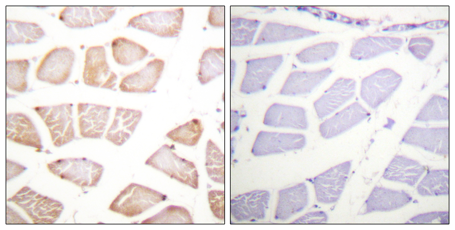 AKT1 Antibody (OAAF00863) in Human skeletal muscle cells using Immunohistochemistry