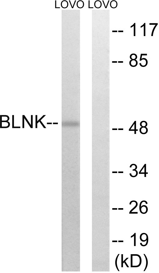 BLNK Antibody (OAAF00868) in 293 cells using Western Blot