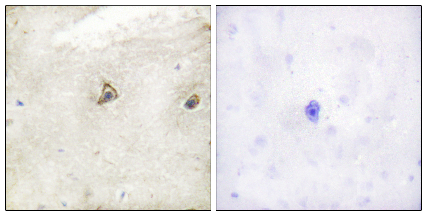 ABL1 Antibody (OAAF00869) in Human brain cells using Immunohistochemistry