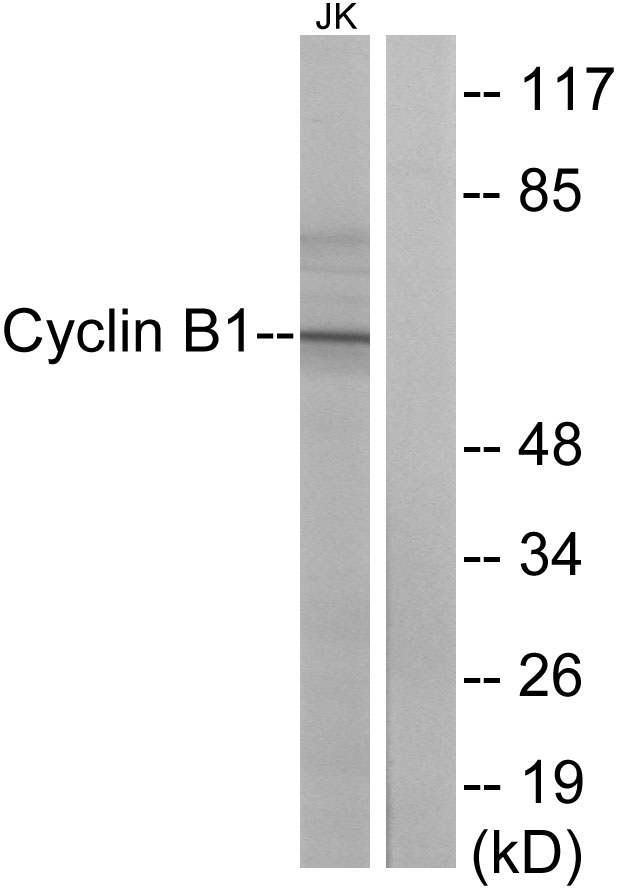CCNB1 Antibody (OAAF00874) in Jurkat cells using Western Blot