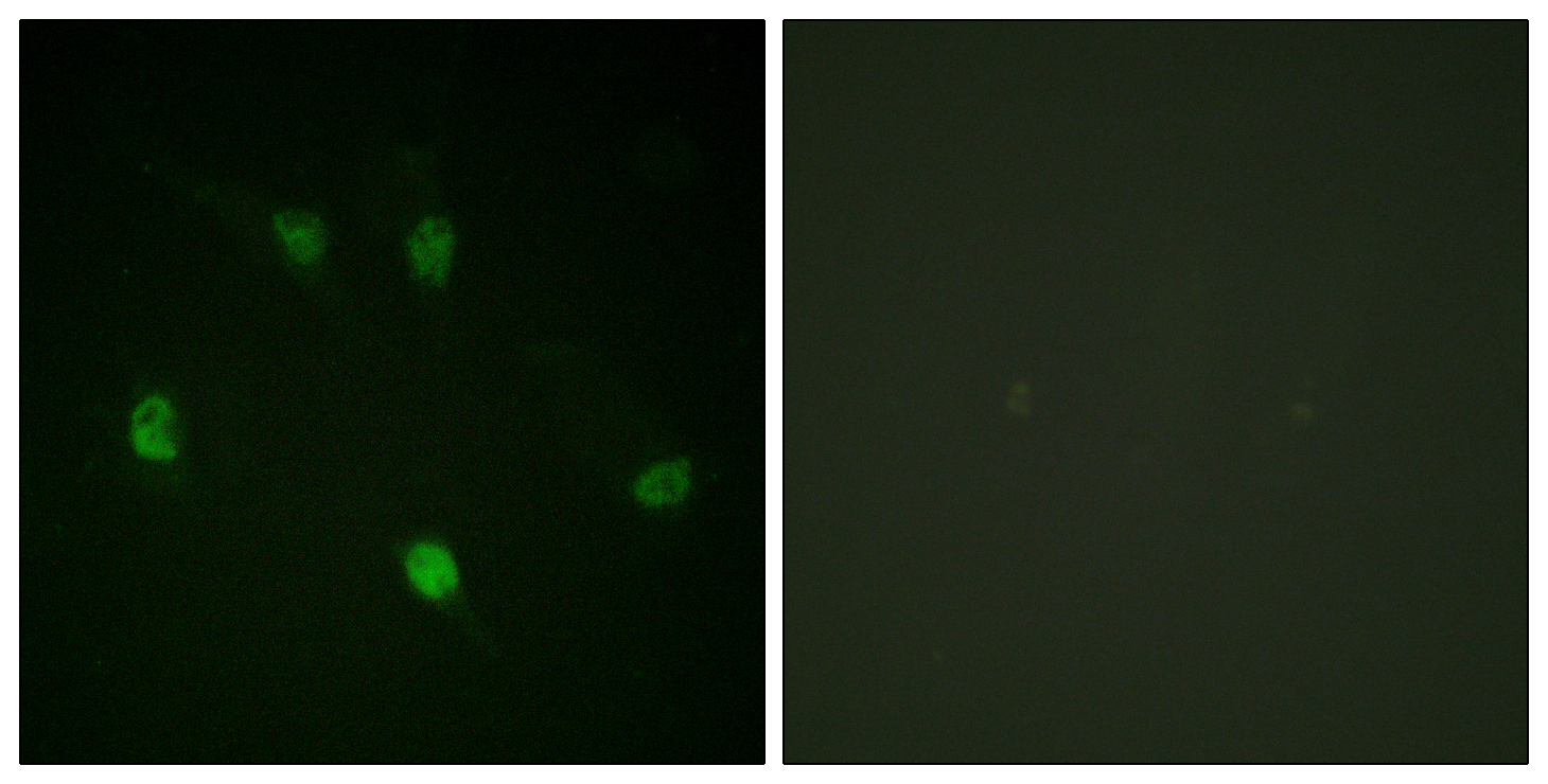 CCNE1 Antibody (OAAF00875) in HeLa cells using Immunofluorescence