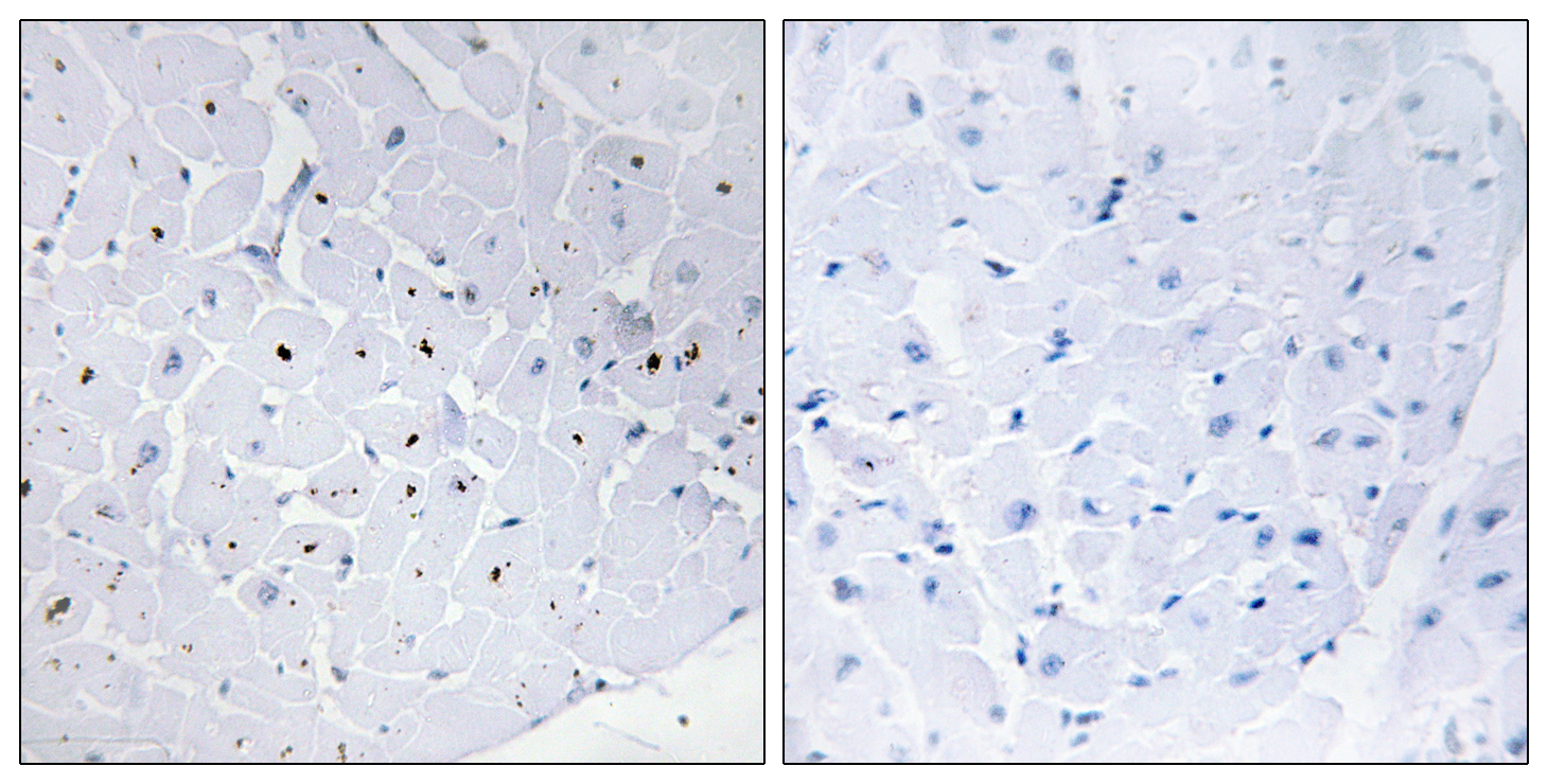 CCNE1 Antibody (OAAF00875) in Human heart cells using Immunohistochemistry