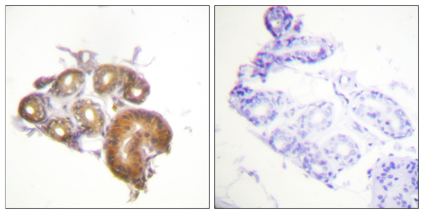 BMX Antibody (OAAF00879) in Human skin cells using Immunohistochemistry