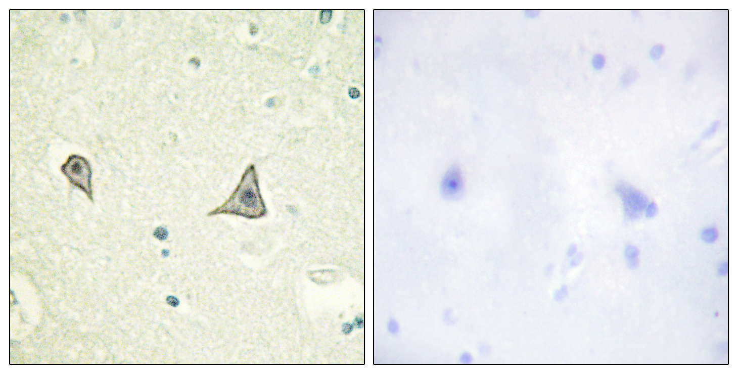 CSF1R Antibody (OAAF00887) in Human brain cells using Immunohistochemistry