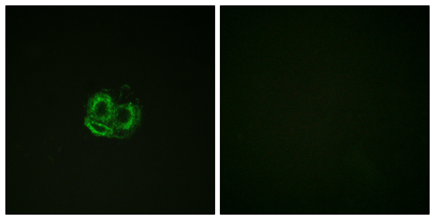 ACTB Antibody (OAAF00923) in HuvEc cells using Immunofluorescence