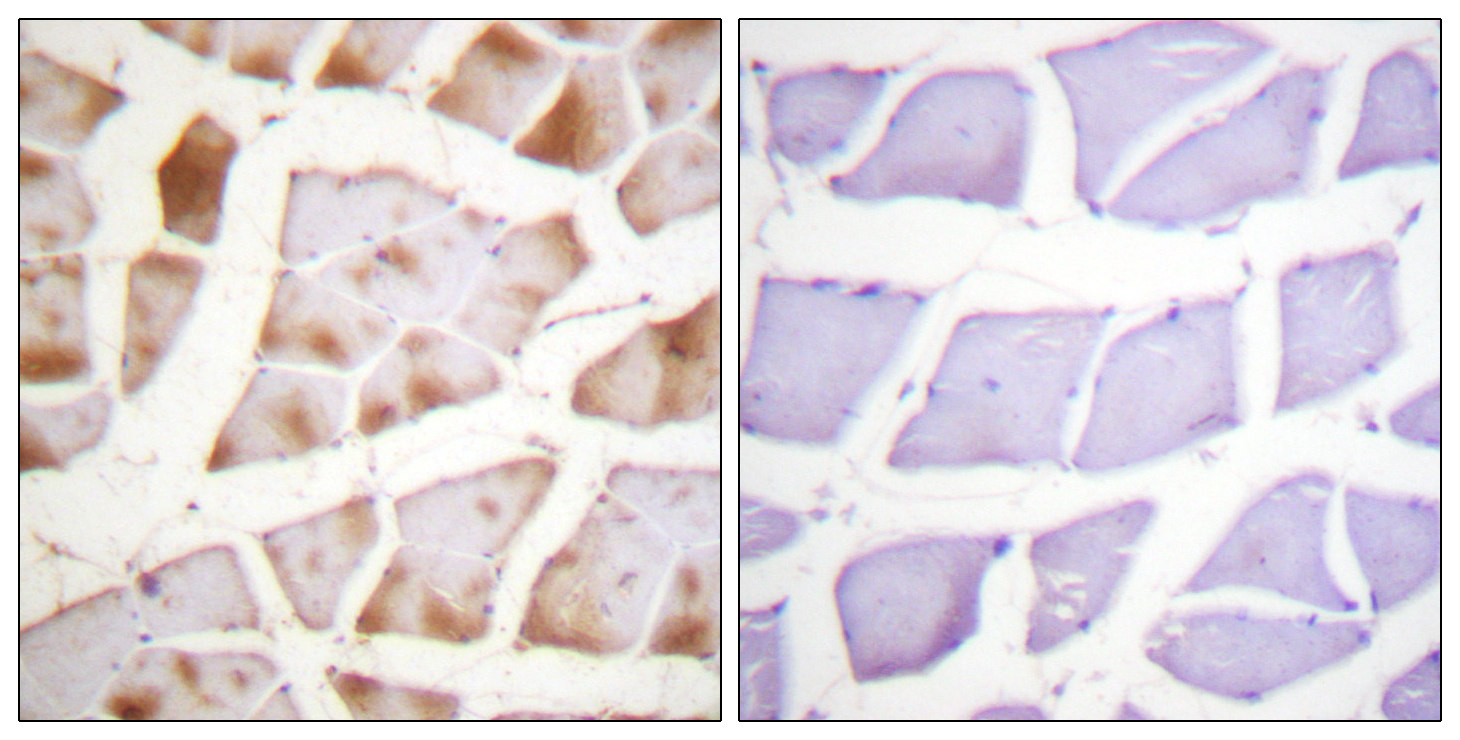 ACTB Antibody (OAAF00923) in Human skeletal muscle cells using Immunohistochemistry