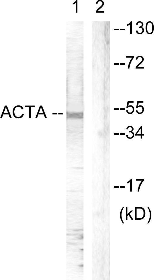 ACTB Antibody (OAAF00923) in Mouse brain cells using Western Blot