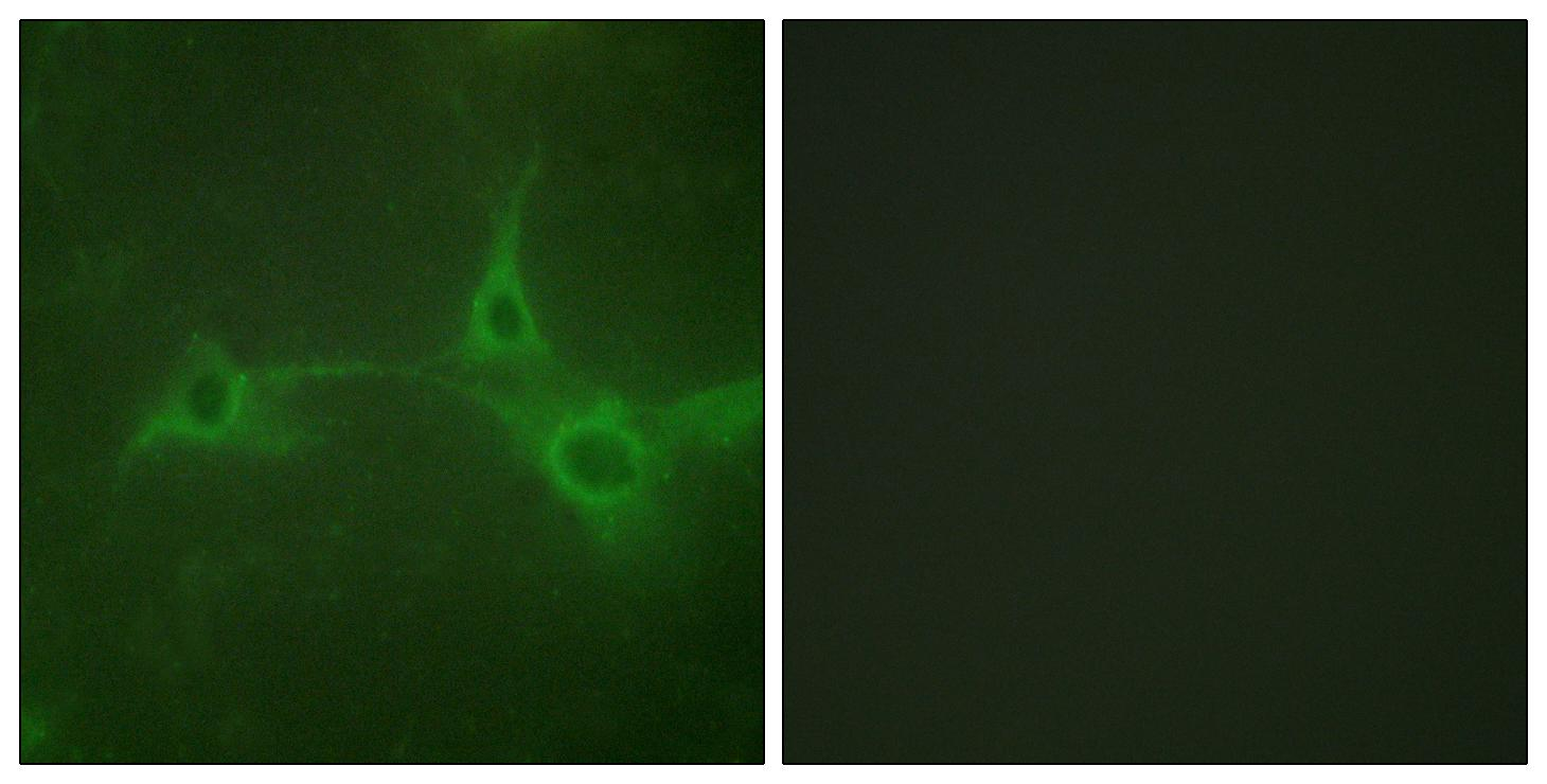 ADAM17 Antibody (OAAF00924) in NIH/3T3 cells using Immunofluorescence